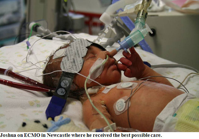 Joshua on ECMO in Newcastle where he received the best possible care